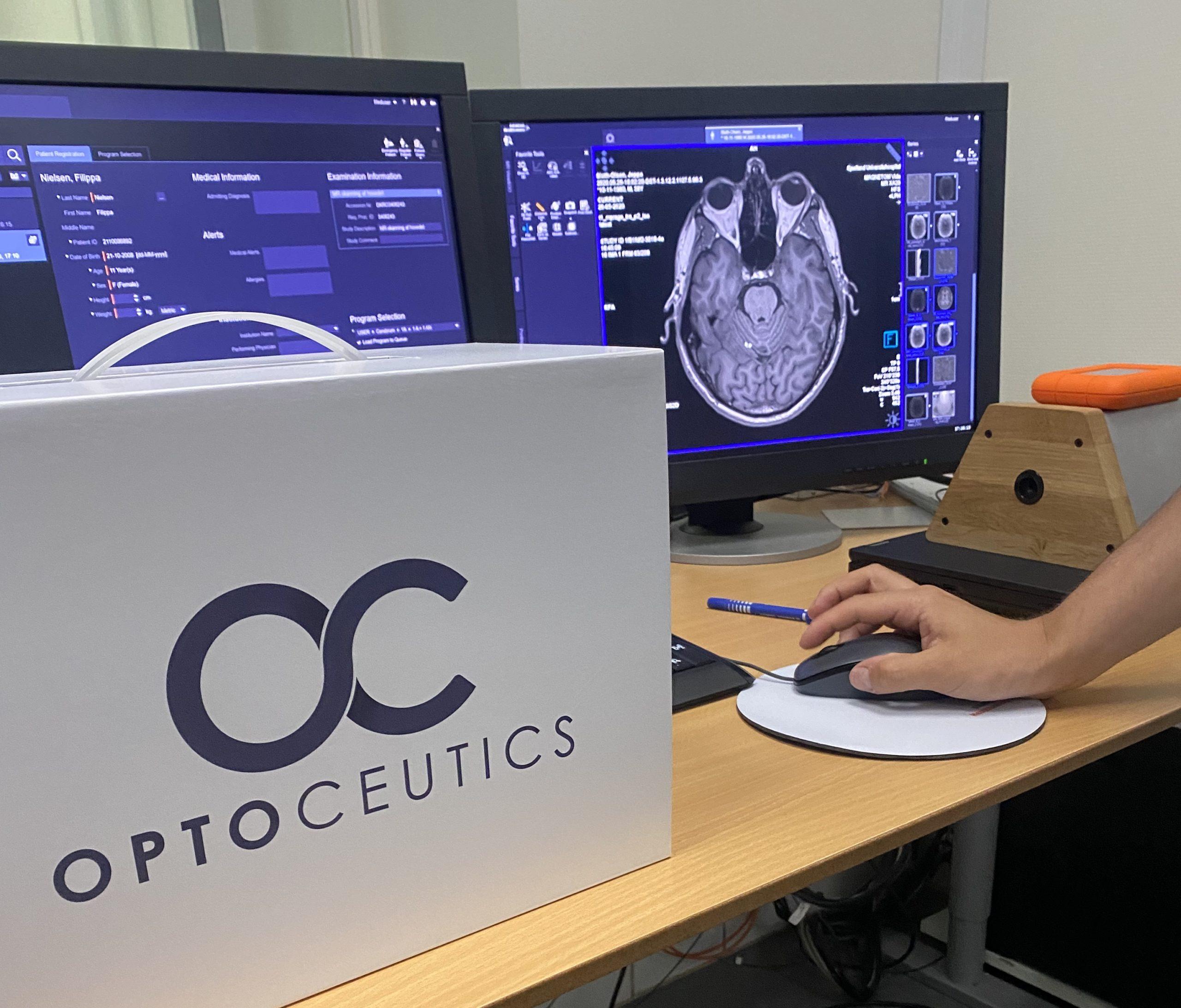 brain scan optoceutics